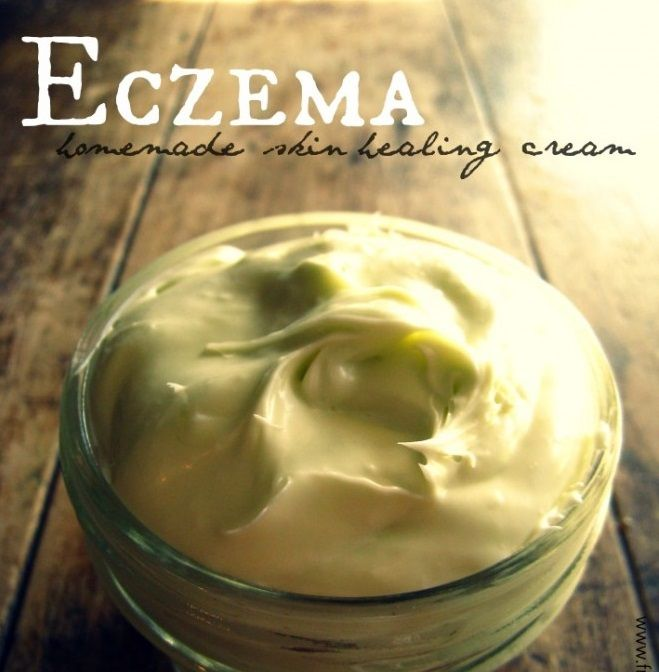 Searching for atruly effective remedy for eczema is often exhausting and can seem at times down right…debilitating.However, moving away from the steroidal treatments of conventional medicine toward the plant-based, anti-inflammatory solutions of herbs + aromatherapy demonstrates the successful revival of nearly forgotten wisdom. We know that eczema, by and large, is an external symptom of …