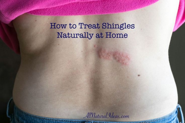How to Treat Shingles Naturally at Home