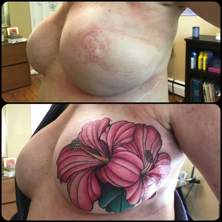 Rose Red Tattoo Ellicott City, MD Mastectomy Tattoo by Lisa Doll