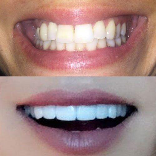 perfect smile veneers купить в томске