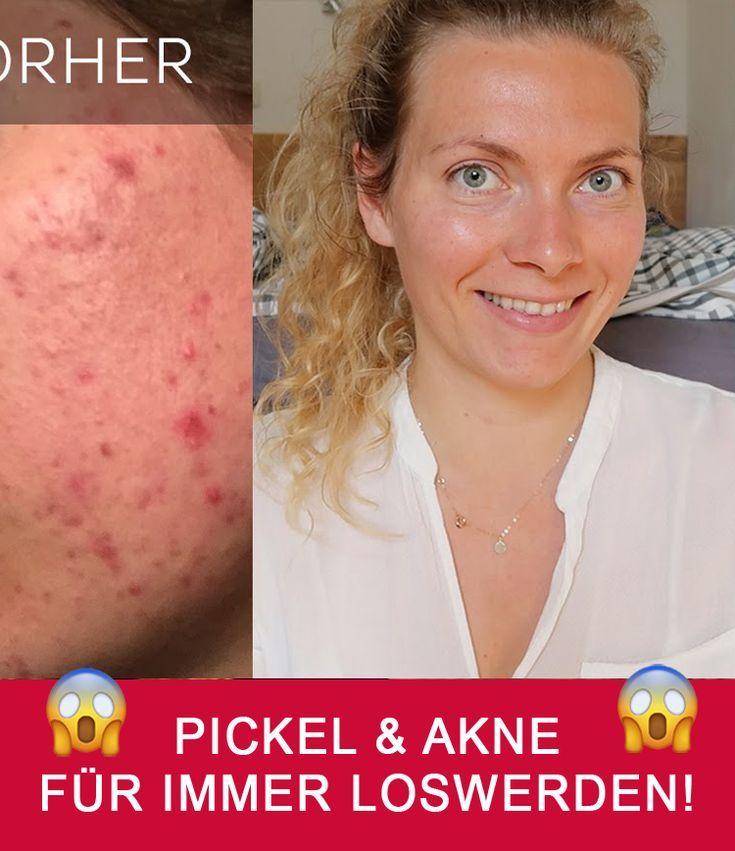 Pickel Narben Creme