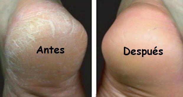 Los pies secos, agrietados o con callos no son realmente atractivos. Si este es tu caso, no te preocupes. Te tenemos la solución perfecta. El tratamiento que te presentamoses simple y fácil de realizaren casa. Con este remedio, tus pies se vuelven muy rápidamente suaves y hermosos.\r\n[ad]\r\nIngredientes\r\n- 4 a 5 litros de agua tibia\r\n- 2 cucharadas de bicarbonatos de sodio\r\n- Aceite de coco o crema crema hidratante que contenga glicerina\r\n- Un guante de crin o una piedra…