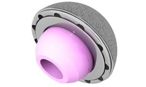 Wright & Schulte LLC Files Metal-on-Metal Hip Implant Lawsuit on Behalf of Recipient of DePuy Pinnacle Metal-on-Metal Hip Replacement Device
