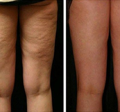 Those fat deposits under the skin are actually known as cellulite. There is no scientific evidence that the cellulite creams are effective, but we all know how much they are expensive! This natural…