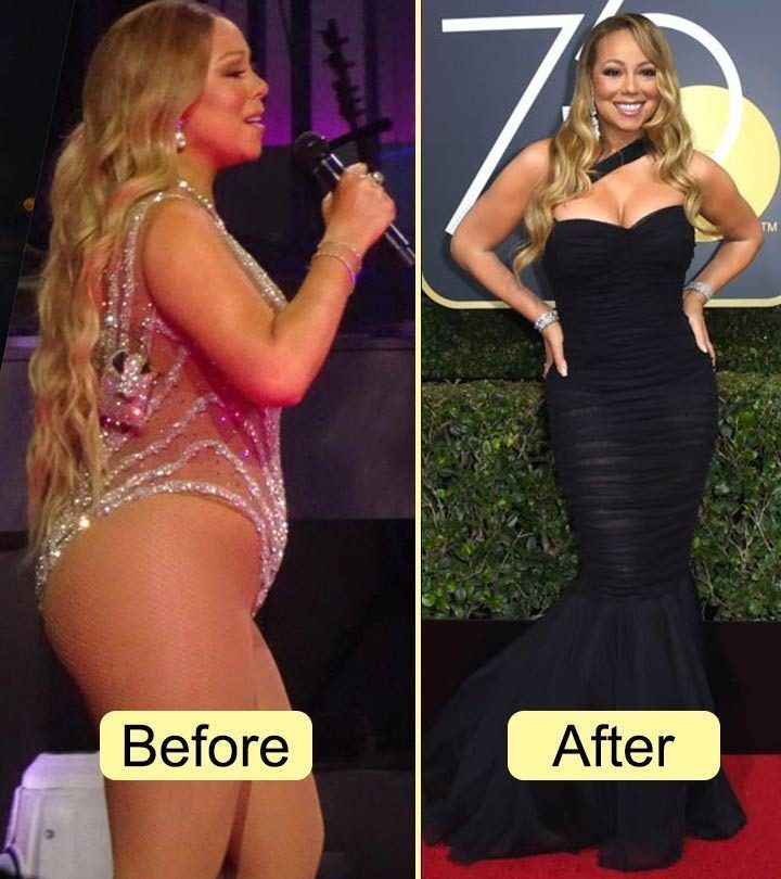 #Celebrities #Famous #Liposuction 25 Famous Celebrities Before And After Liposuc
