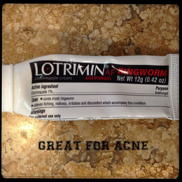 Lotrimin cream is a must for athletes! Apply on acne and bumps. The breakout disappears over night! It worked great on my son's forehead breakout from football.
