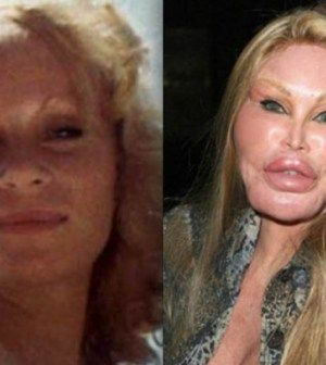 The Biggest Celebrity Plastic Surgery Fails – 6098.info
