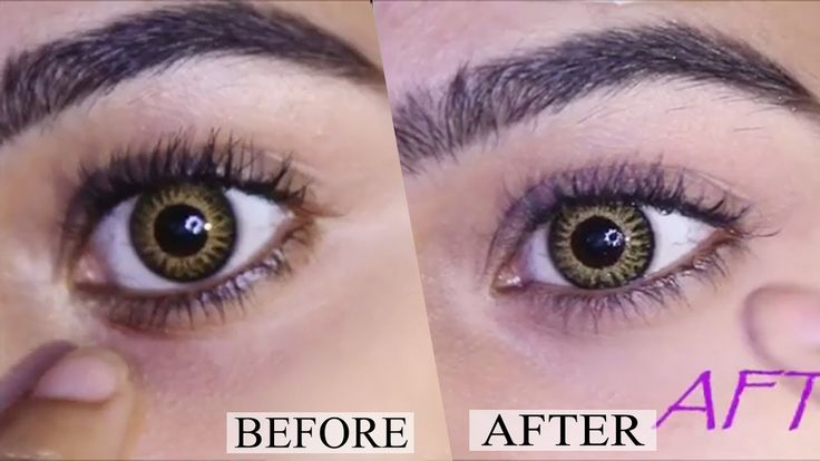 How to Remove Dark Circles Under Eyes at Home Permanently Naturally