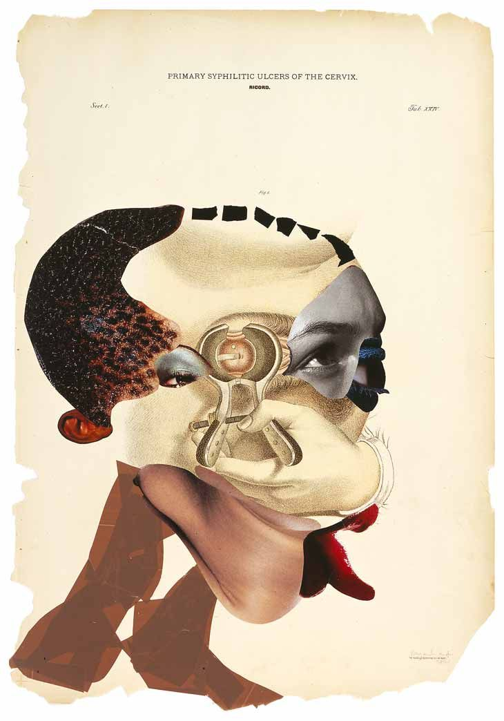 """Wangechi Mutu, """"Primary Syphilitic Ulcers of the Cervix"""", 2005, collage on found medical illustration paper. Formed from cut and paste, Mutu's creations are hybrids of multiple sources referencing the scars of cultural imposition. Placed atop medical diagrams, they feed off their cancerous classifications, directly confronting cultural preconception and bias."""