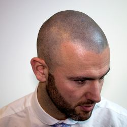 A world class scalp micropigmentation result, delivered by the experts in hair restoration techniques. For more information see http://www.vincihairclinic.com - #smp #scalpmicropigmentation #scallppigmentation #vincihairclinic