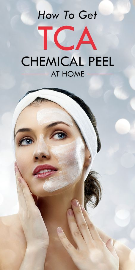 How To Get A TCA Chemical Peel At Home