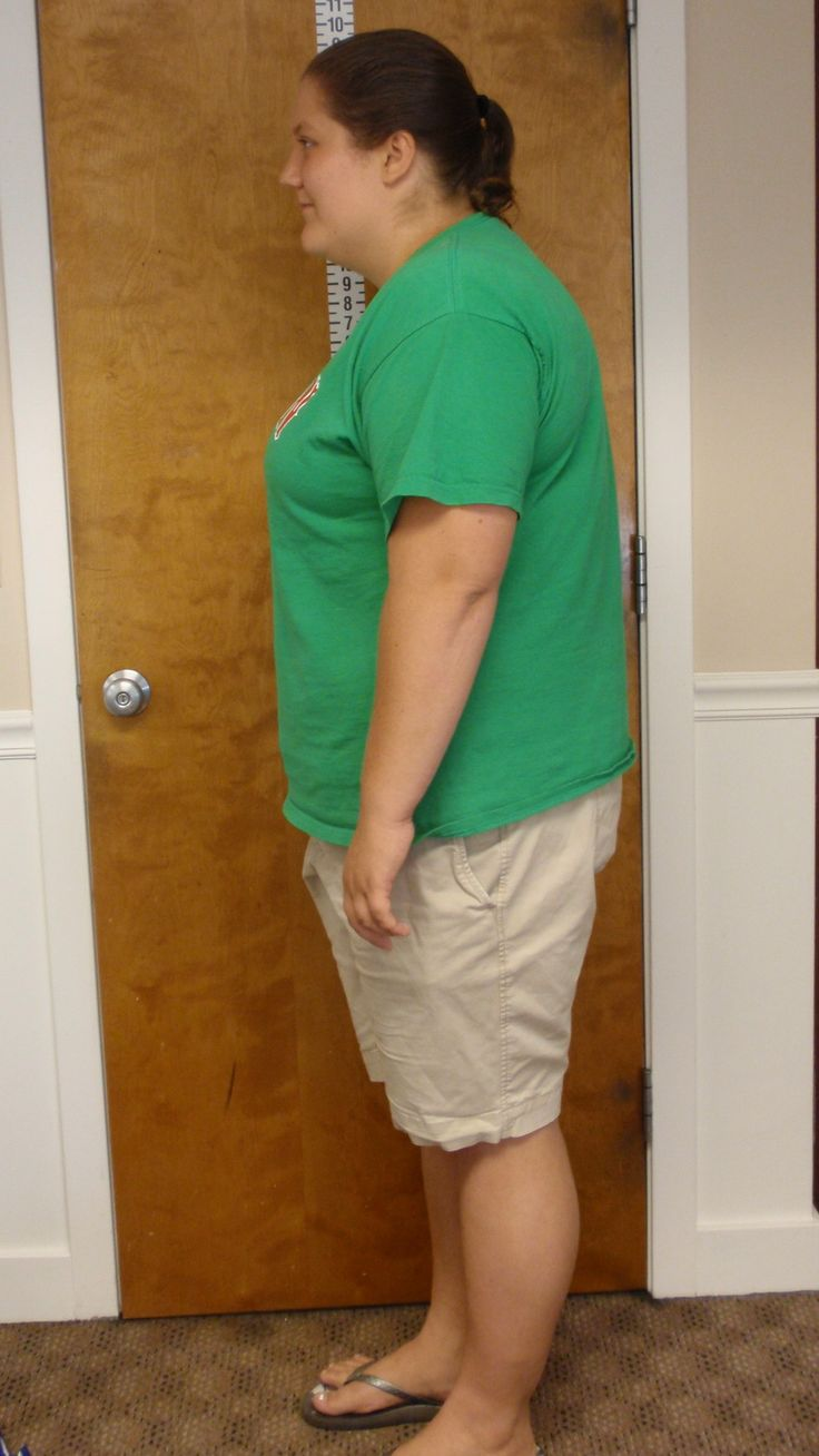 ideal weight loss marshfield ma