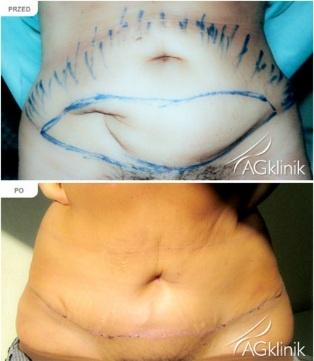 Zabieg plastyki brzucha