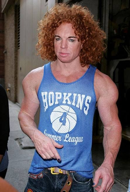 What Happened to Carrot Top and Why Does He Look Like Walking Photoshop?