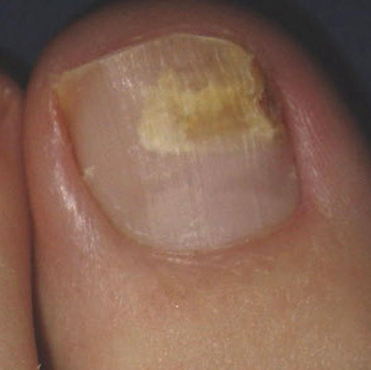 What is the purpose of toenails?