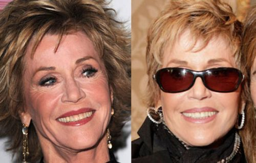pics plastic surgery | Jane Fonda Plastic Surgery – A Beautiful Old Age Present