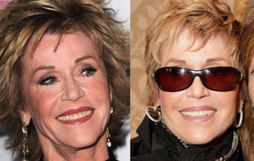 pics plastic surgery | Jane Fonda Plastic Surgery – A Beautiful Old Age Present