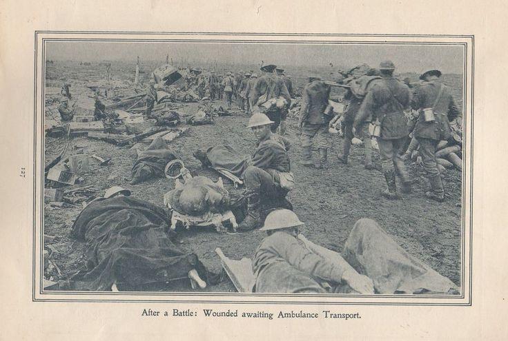 "Original 1917 Anzac Print-Antique Vintage ""After a Battle: Wounded awaiting Ambu"