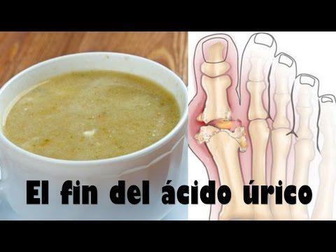 Acaba con el acido urico y la gota de una vez con estos remedios - YouTube