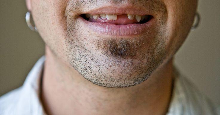 Proceso de identificar cuerpos por los dientes . La identificación dental de un cuerpo es necesario cuando la identificación visual es imposible y el fallecido no tiene otro medio de identificación. La desfiguración extensa o la descomposición del cuerpo son dos situaciones en las que se requiere la odontología forense. La disponibilidad nacional de los registros dentales juega un papel vital en ...