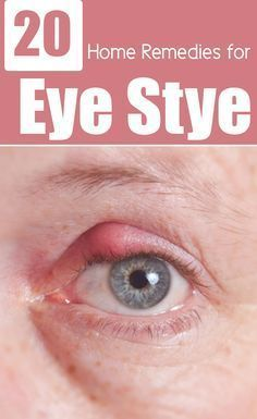 26 Effective Home Remedies For Eye Stye
