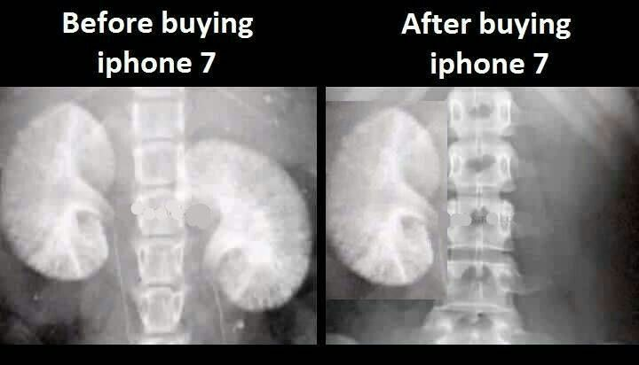 The iPhone side effect
