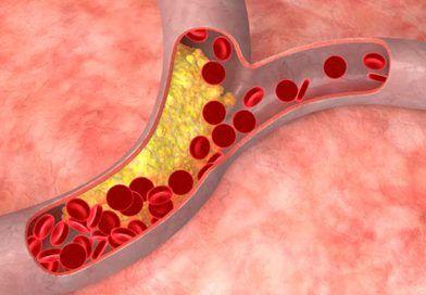 Cum îţi poţi curăţa vasele de sânge de colesterol