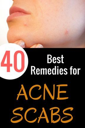 40 Best Ways To Get Rid Of Acne Scabs Overnight Dong Pinterest