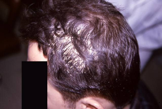 Hairdiseases hair loss can be directly caused by microbe diseases hair loss can be directly caused by microbe diseases from the hair but also from avitaminoses hunger diabetics acute hormonal di pinteres urmus Choice Image