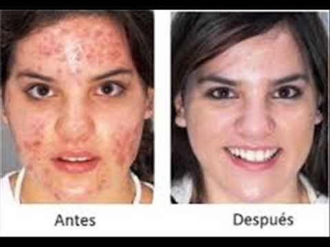 Jabones asepxia | Como eliminar el acne