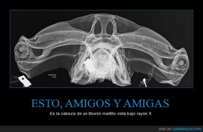 ESTO, AMIGOS Y AMIGAS - Es la cabeza de un tiburón martillo vista bajo rayos X
