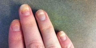 Τα Νύχια «Χτυπούν» Καμπανάκι Για Την Υγεία  http://championsland.blogspot.com/2014/02/nuxia-ugeia.html