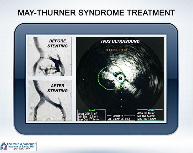 Diagnosis and Treatment of May-Thurner Syndrome