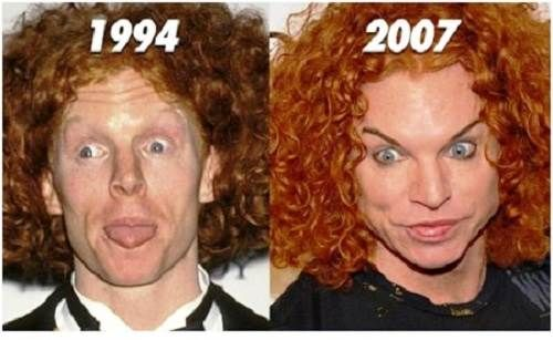Carrot Top plastic surgery flops