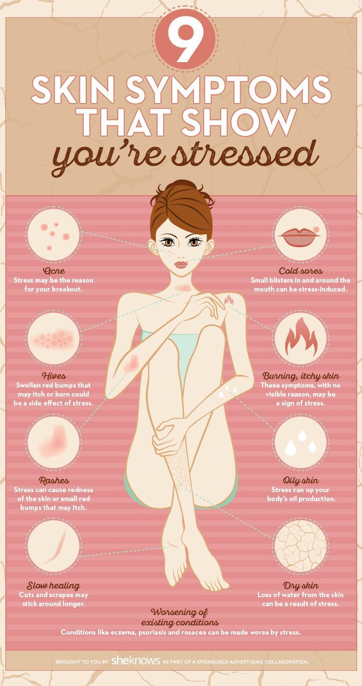 These skin symptoms might tell you when it's time to relax. Skin symptoms that show you're stressed.