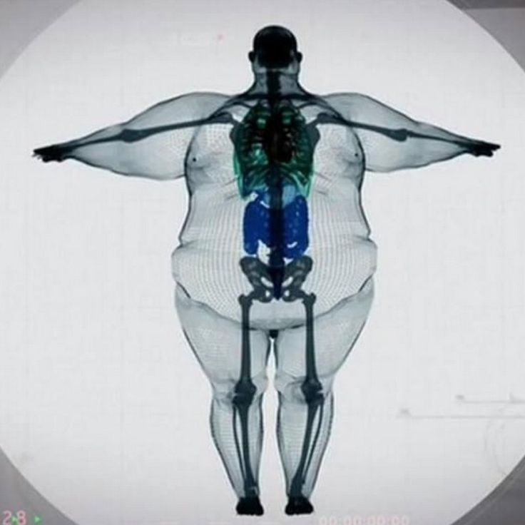X-Ray Of A 900 Pound Man Released | Liberty Viral