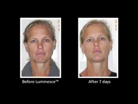 Jeunesse® Global LUMINESCE™ Amazing Before & After Photos