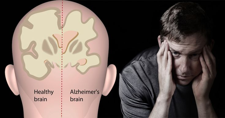 Alzheimer's disease is among the top 10 leading causes of death in the United States. Alongside it is stroke, which can cause dementia, and suicide, which is often linked to depression. The treatment plants for these illnesses aren't all that different. They often involve medication. Of course, medication comes with its own list of possible …