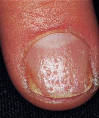"Pitting and Grooving-Depressions and small cracks in your nails are known as ""pitting"" of the nail bed and are often associated with psoriasis, an inflammatory disease that leads to scaly or red patches all over the body. ""Individuals who suffer from psoriasis develop clusters of cells along the nail bed that accumulate and disrupt the linear, smooth growth of a normal nail,"" Dr. Agarwal explains""-----pinned by Annacabella"