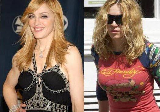 Madonna Plastic Surgery - Facelift & Nose Job Done Well - http://plasticsurgerytalks.com/madonna-plastic-surgery/