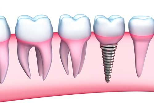 Are you missing one or more permanent teeth? If yes, then you should visit a dental center to conclude a permanent solution to this problem. #Dental #implant is one of the best ways to treat the dental problem of missing teeth.