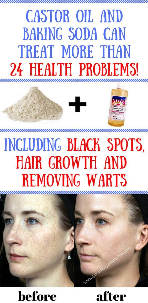 Castor Oil and Baking Soda Can Treat More Than 24 Health Problems Including black spots, hair growth and removing warts. #health #homeremedies #healthytips