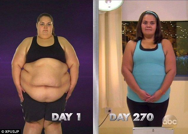 Is it ever ok to lose weight while pregnant photo 5