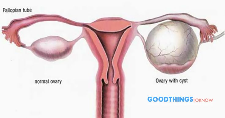Clean the ovary cysts with the best recipes!..Ovary cyst cause bloating, lower abdominal pain, or lower back pain - https://goodthingstoknow.co/clean-ovary-cysts-best-recipes/