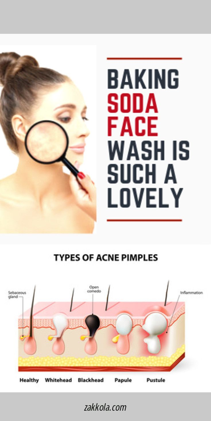 Just click the link for more acne. Check the webp…
