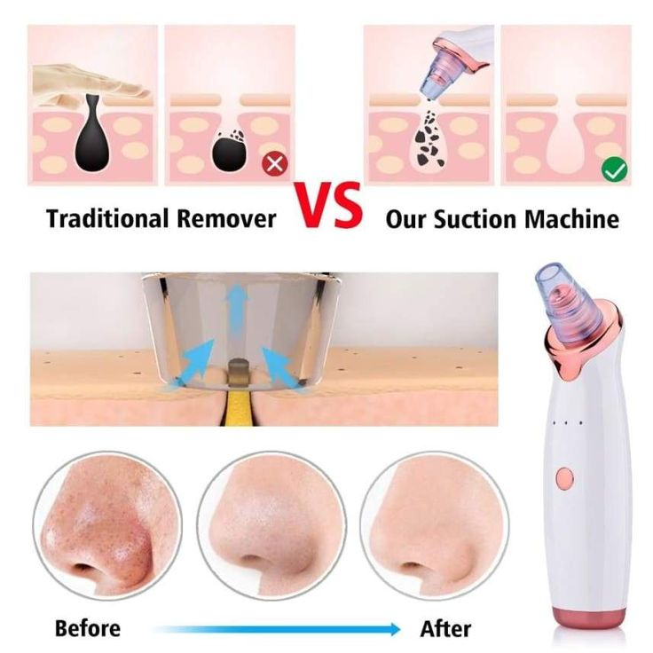 Blackhead Remover Vacuum Skin Care Face Clean Acne Removal