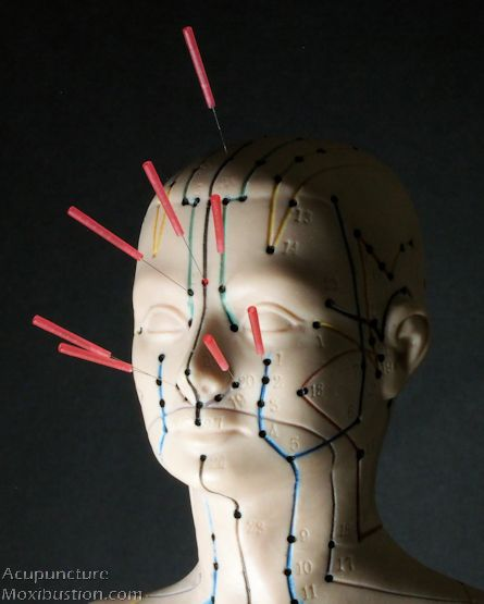 Acupuncture points for sinusitis, sinus infection, sinus congestion, sinus pain and headache. Commonly used acupoints for sinus problems are not only located around frontal, ethmoid, maxillary sinuses on the face, but also on arms, legs, neck, back and abdomen. http://www.acupuncturemoxibustion.com/acupuncture-points/sinus-points/