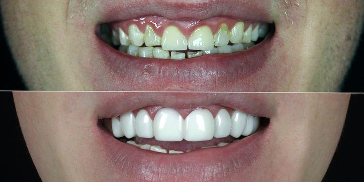Dental veneers smile makeover by brighterimagelab.com