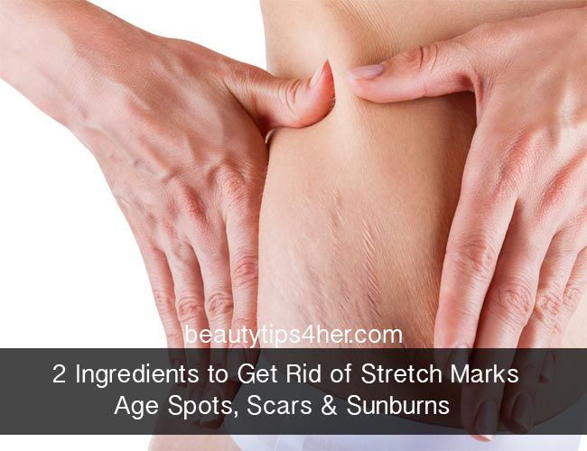 2 Ingredients to Get Rid of Stretch Marks, Aging Spots, Sunburns And Scars
