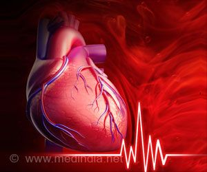 Cardiovascular Disease Risk Increases in Patients With Sepsis or Pneumonia After Hospital Admission